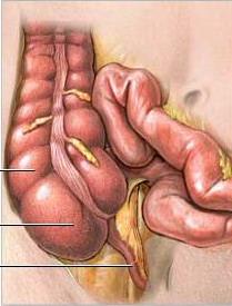 Гипогонадизм лечение симптомы