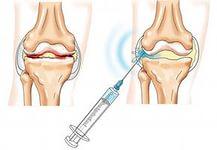 Кислород в сустав лечение суставов в соль-илецке